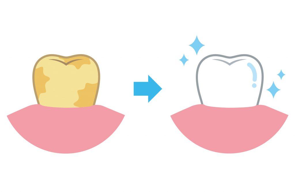 歯のホワイトニングの種類とその仕組みとは?